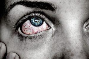 Gerötete, juckende Augen sind häufig ein Allergie-Symptom